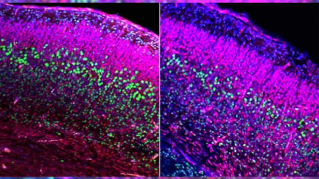 Newly identified pathway links fetal brain development to adult social and repetitive behavior