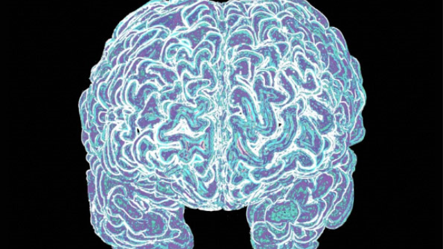 Recovering attention after a stroke: Brain's right hemisphere may be more valuable