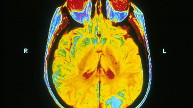 Two forms of radiosurgery for brain metastases are equally effective