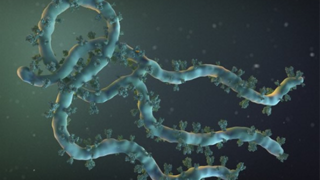 Most Ebola survivors examined in study experienced brain symptoms six months after infection