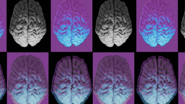 Discovery of key abnormality affecting brain development in people with Down syndrome