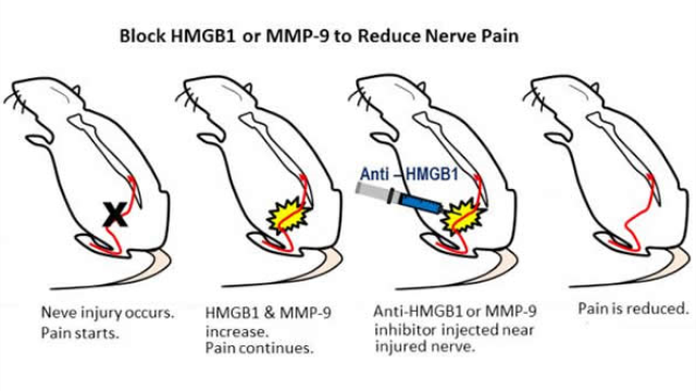 New targets for reducing nerve pain identified