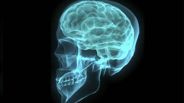 Different mental disorders cause same brain-matter loss, study finds