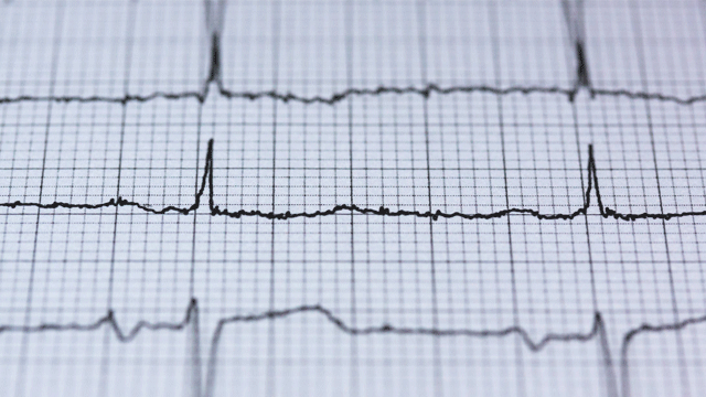 First Randomised Trial Tests Criteria Used to Diagnose Heart Attack