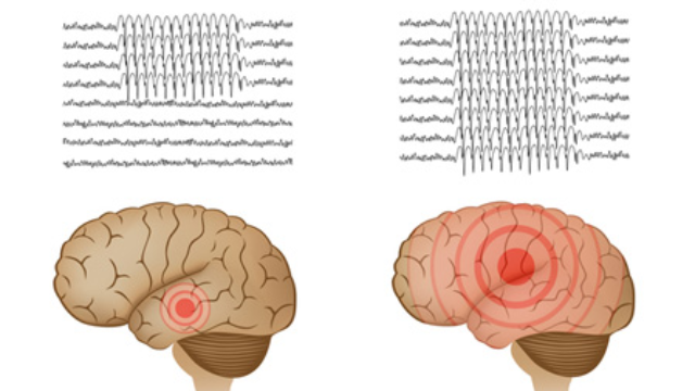 Focal Epilepsy and Depression May Share a Genetic Cause