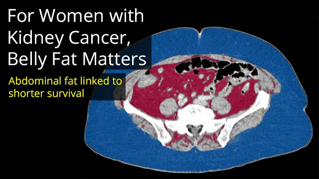 For Women with Kidney Cancer, Belly Fat Matters