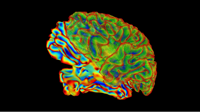 Fungal Infection Leads to Brain Inflammation and Memory Impairment