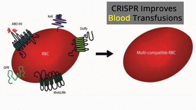 Gene Editing to Improve Blood Transfusions