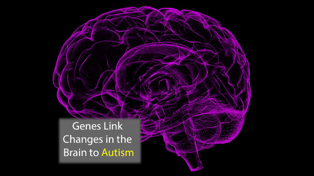 Genes Linked to Brain Anatomy in Autism Identified