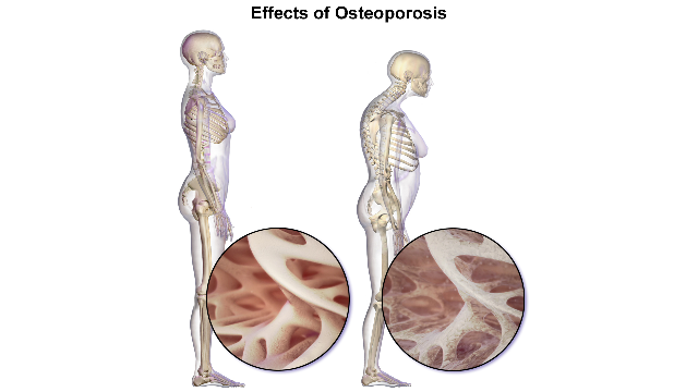 Genetic Screen Predicts Osteoporosis Risk