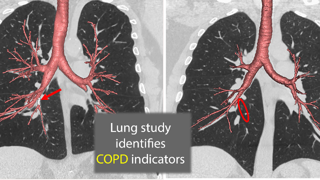 Genetic Variations in the Lungs Identify COPD Risk