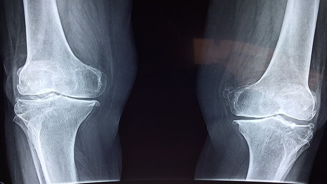 Genetics Reveal New Treatment Options for Osteoarthritis