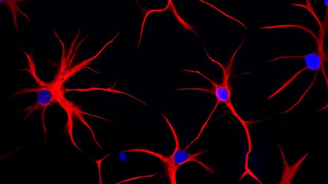 GFAP Astrocyte Mutation Triggers Chaos in Brain Cells
