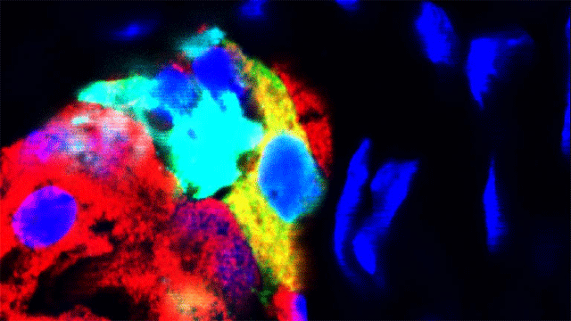 Glucagon-producing Cells Forced to Produce Insulin: New Therapeutic Approach for Diabetes?