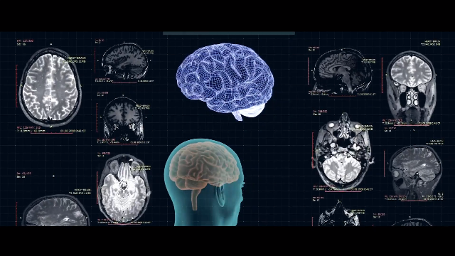 Grant Brings Ultrasound Therapy for Neurological Disease a Step Closer