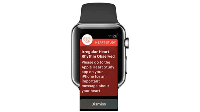Heart-Rhythm Trial Launched: An Apple-Stanford Collaboration