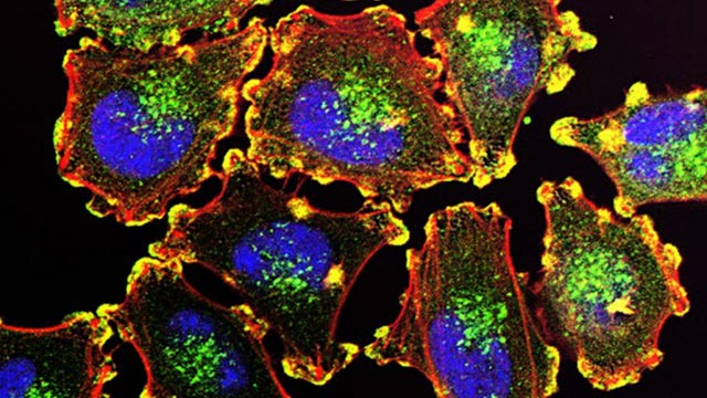 Hindering Melanoma Metastasis with FDA-approved Drug