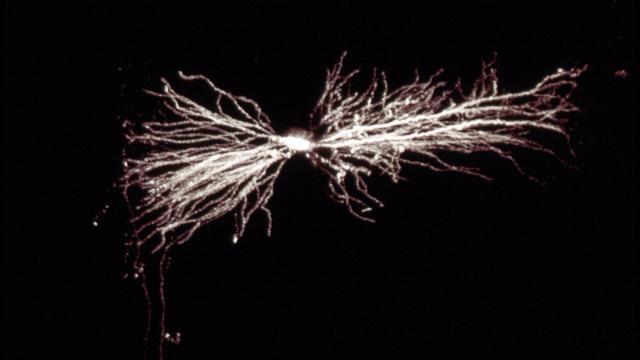 Hippocampal Interneuron
