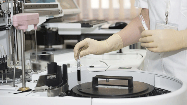 How Transitioning to Automation in the Lab Improves Patient Outcomes