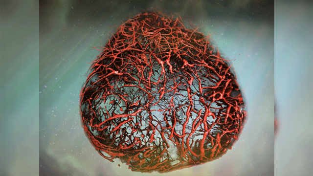 Human Blood Vessels Organoids a Model for Diabetes Research