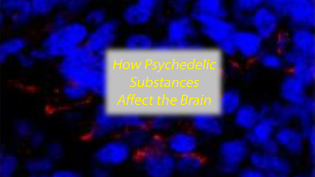 Human Minibrains reveal the Effects of Psychedelic Substances