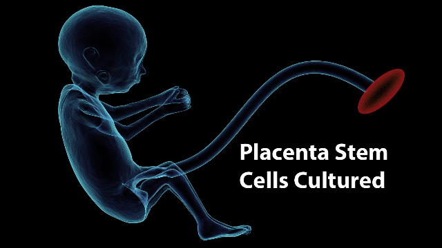Human Placenta Stem Cells Cultured for the First Time