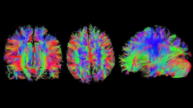 Imaging the Brain in the Era of Modern Neuroscience