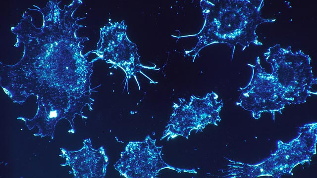 Immune Cells Double-check to Determine if Cells are Cancerous