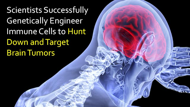 Immune Cells Hunt Down Deadly Brain Tumors Thanks to Novel Target Molecule