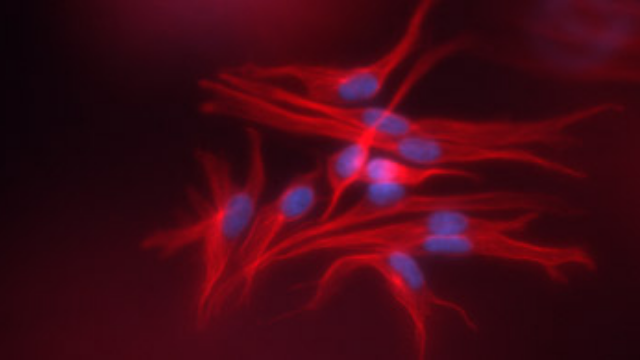 Immunofluorescence Visualization of Fibroblast or Cancer Cells in RAFT™ 3D Cell Cultures