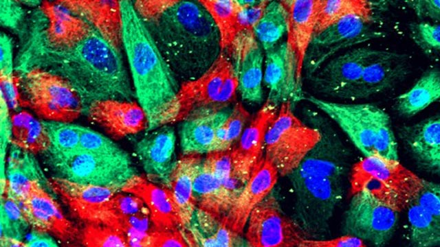Immunotherapy Beneficial in Some Men with Prostate Cancer