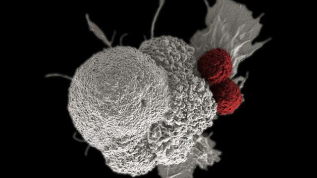 Immunotherapy Effective as First-line Treatment for Advanced Head & Neck Cancer