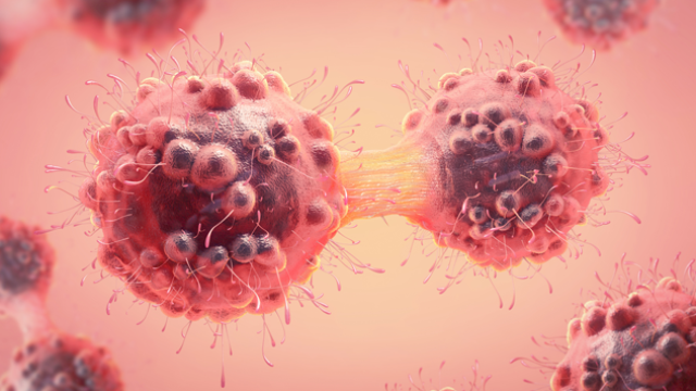 Immunotherapy Success for Triple-Negative Breast Cancer