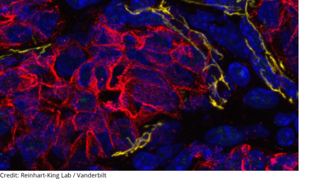 Improving Cancer Treatments by Softening the Extracellular Matrix
