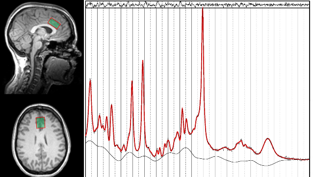 Increased Glutamate Imaged in Addiction Areas of the Brains of Alcoholics