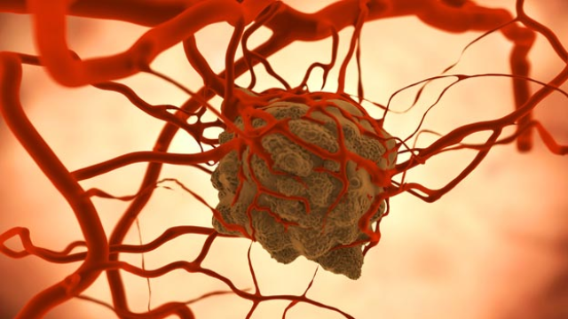 Inhibiting Protein Could Slow Growth of Colon & Rectal Cancers
