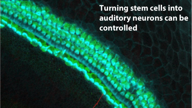 Inner Ear Stem Cells May Someday Restore Hearing