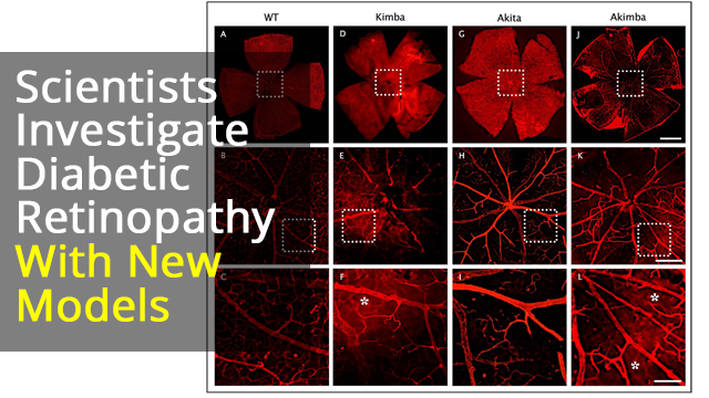 Investigating Inflammasomes Implicated in Diabetic Retinopathy