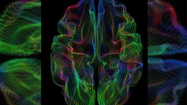 A new wrinkle: Geometry of brain's outer surface correlates with genetic heritage