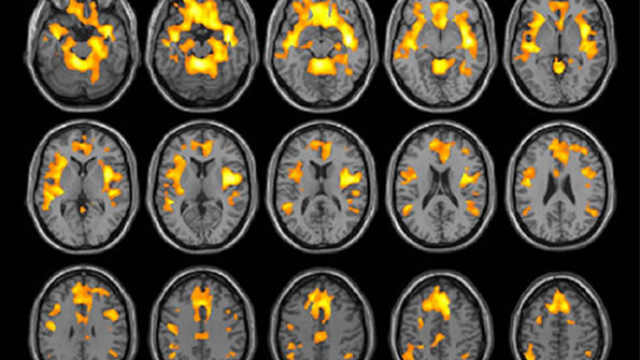 Substance abuse reduces brain volume in women but not men