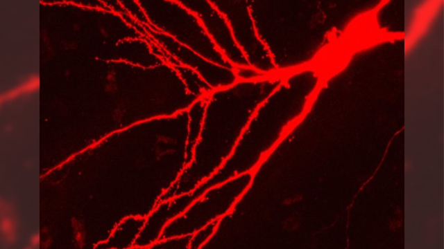 Novel compounds arrested epilepsy development in mice