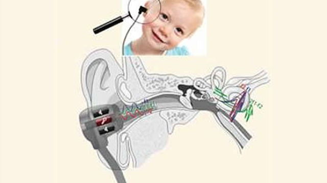 Ear test may identify autism risk