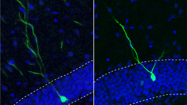 Small molecule keeps new adult neurons from straying, may be tied to schizophrenia