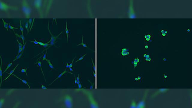 Epigenetic driver of glioblastoma provides new therapeutic target