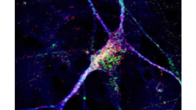 New neurons reveal clues about an individual's autism