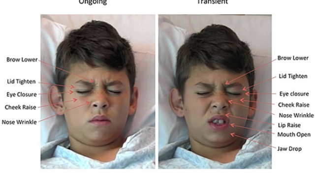 "Staring pain in the face – Software ""reads"" kids' expressions to measure pain levels"