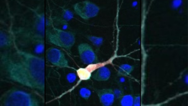 Scientists identify new drug target to treat ALS
