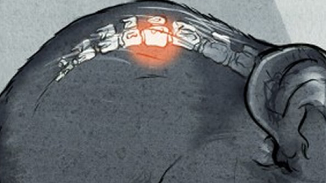 Researchers find stroke damages blood-spinal cord barrier