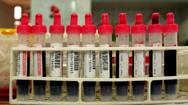 Blood Test for Brain Injury May Not Be Feasible