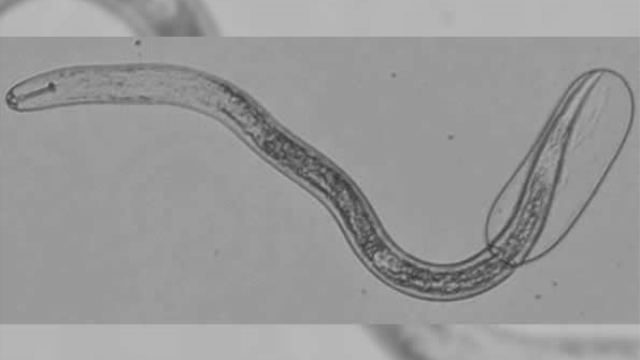 Closer look reveals nematode nervous systems differ